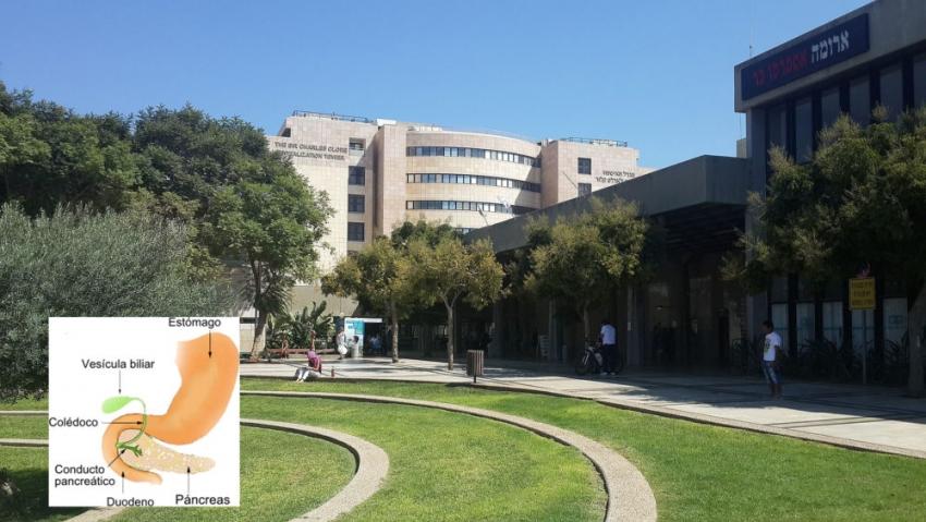 Científicos israelíes desarrollan tratamiento que erradica el cáncer de páncreas en 14 días